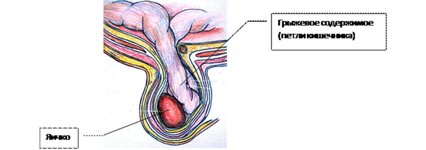 erekciós kezelés prosztatagyulladás után egy merevedésű férfi kiemelkedik