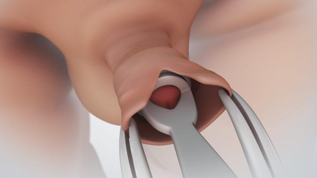 nappali éjszakai erekció visszaszoríthatja az erekciót
