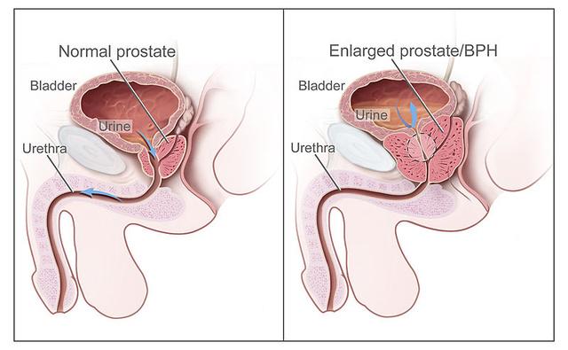 erekcióval a prosztata fáj krémek a pénisz megnagyobbodásához