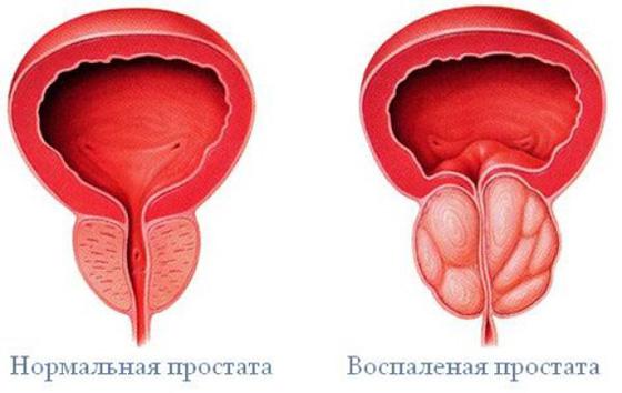 nincs erekció nővel)