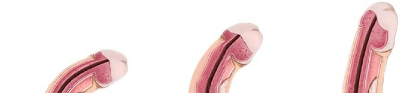 a pénisz hüvelye puha ha felálló