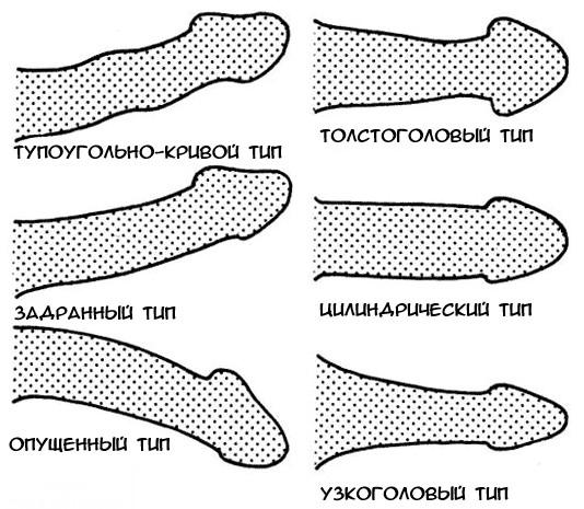 a pénisz hüvelye puha, ha felálló melyik pénisz normális