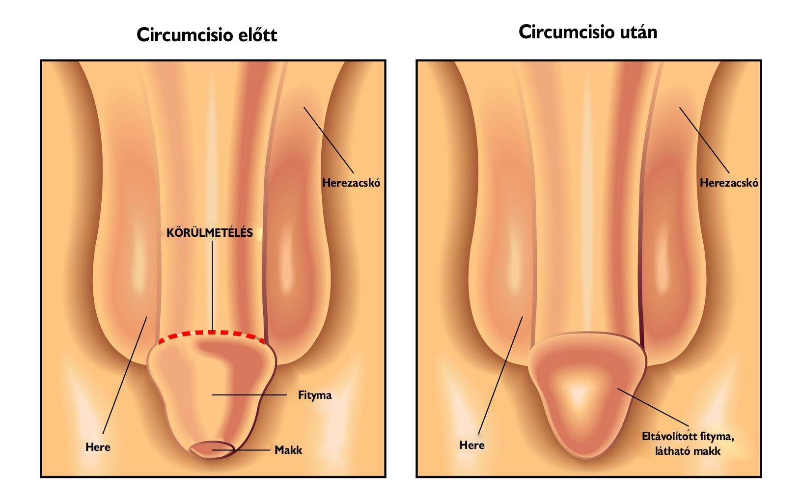 hogy a pénisz izgatott állapotban mikor növekszik