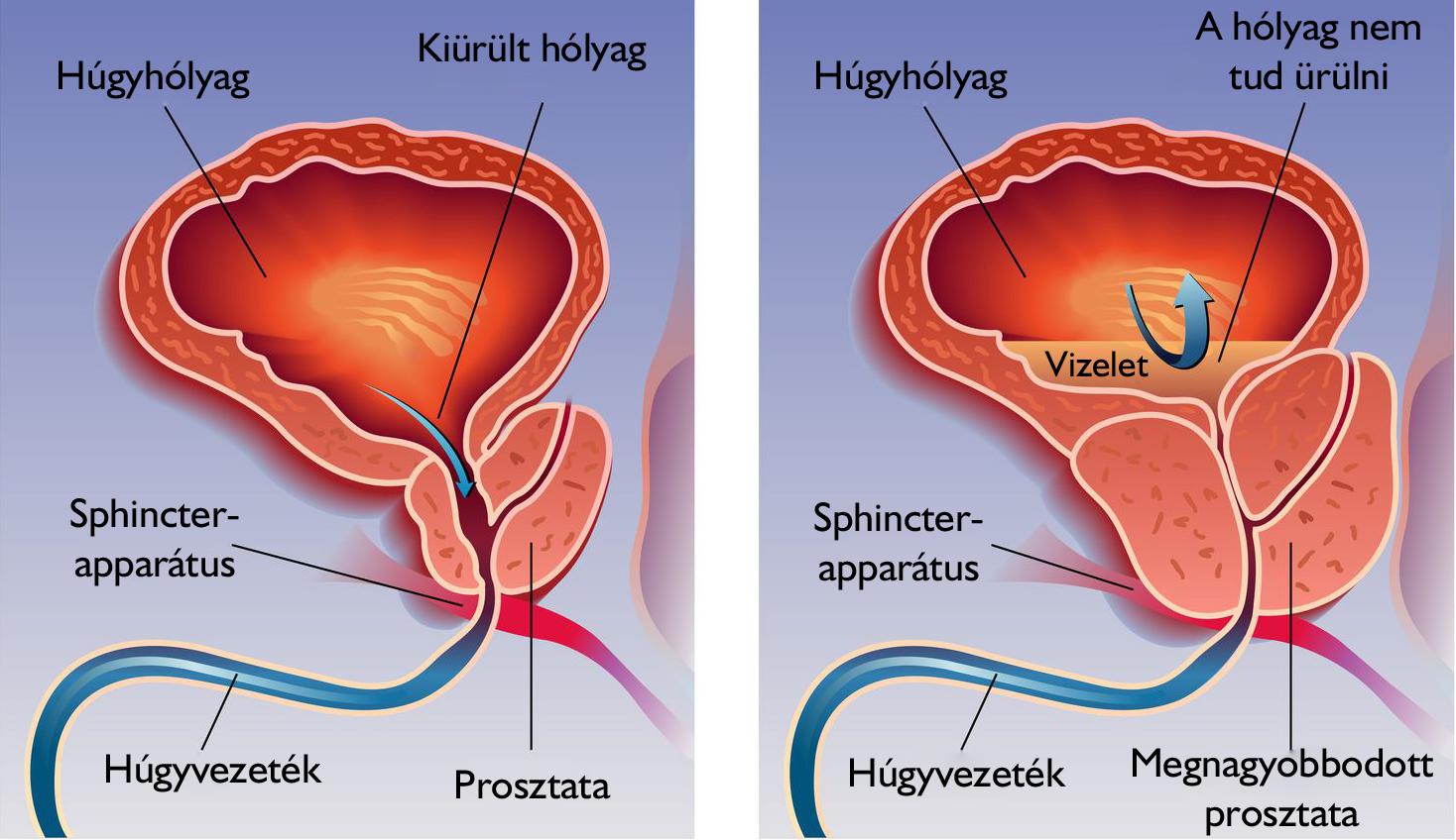 prosztata az erekció során