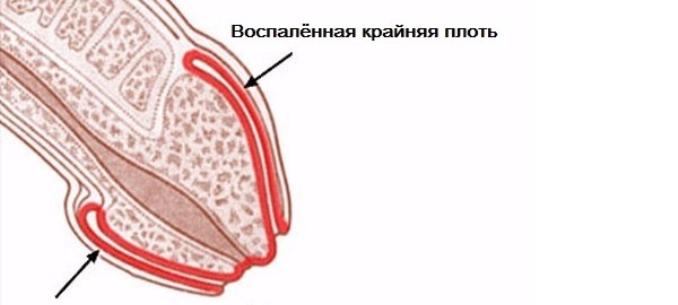 A betegség megnyilvánulása a péniszen - imperial22.hu