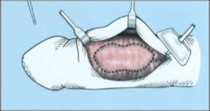 Hímvesszőgörbület   Urológiai Klinika